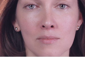 2 простых упражнения, которые изменят форму носа без ринопластики