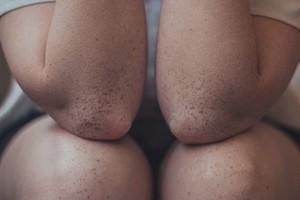 Сгладить углы: почему у тебя сухая кожа на локтях (причины и лечение)