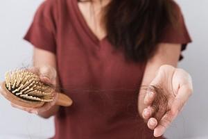 A, D и F: каких витаминов не хватает, если выпадают волосы (полный список)