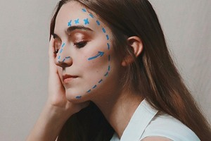 5 признаков того, что тебе стоит подумать о подтяжке лица