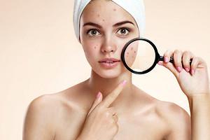 Как убрать прыщи в домашних условиях по совету дерматолога