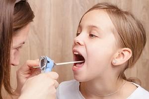Не только ангина: 17 причин белого налета в горле