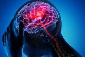 13 неочевидных признаков рассеянного склероза