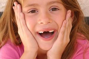 Хуже конфет: 11 продуктов, которые вредны для зубов
