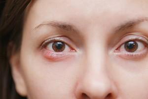 Ячмень на глазу: психосоматика возникновения (бактерии не виноваты)
