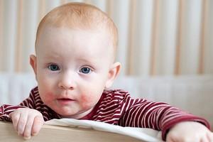Психологические причины атопического дерматита у детей