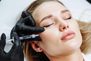 Коррекция скул филлерами: как изменить внешность за 15 минут (мнение косметолога)