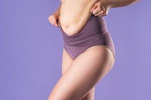 Как убрать обвисший живот после беременности без операции (и когда без нее не обойтись)