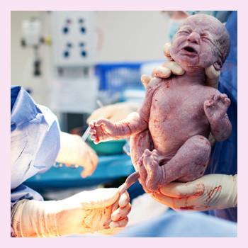 Экстренное кесарево сечение: причины, ход операции, риски