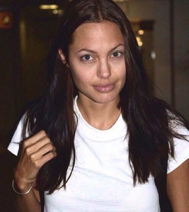 Анджелину Джоли пришлось срочно госпитализировать