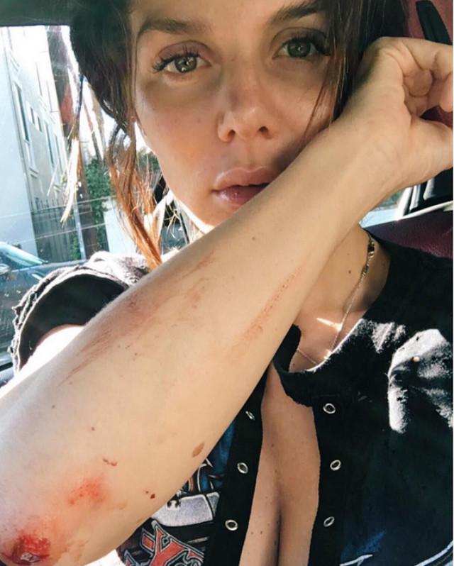 Анна Седокова рассказала, откуда у нее ужасные шрамы и синяки