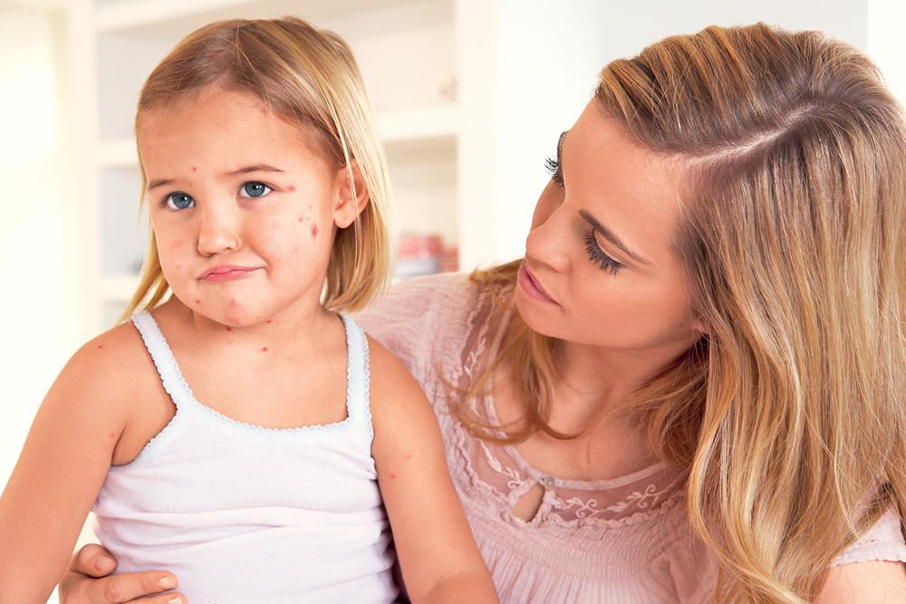 У ребенка корь: симптомы, режим, питание