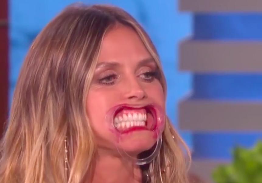 Видео дня: Хайди Клум читает скороговорку в стоматологических распорках