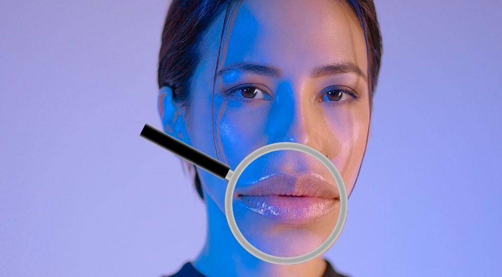 Утка в здании: топ-5 ошибок при пластике губ, которые изуродуют милую внешность