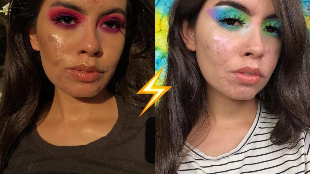 Акнепозитив: новое направление в макияже для тех, у кого не идеальная кожа