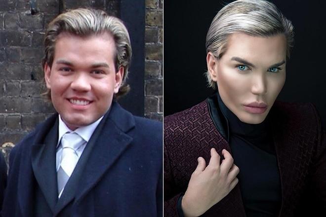 Разница на лицо: снимки Родриго до и после пластических операций.