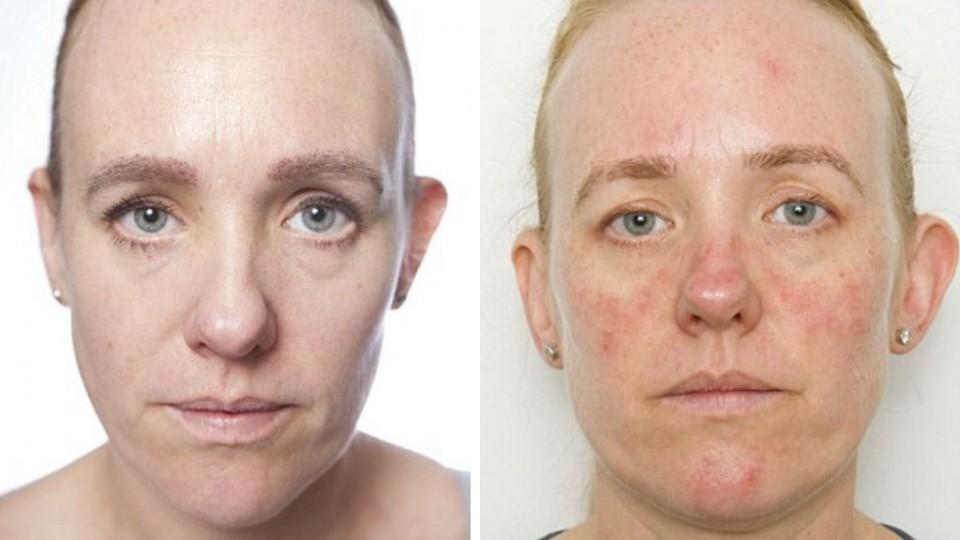 Глубокие морщины и воспаление глаз: как будет выглядеть кожа, если не умываться 30 дней?