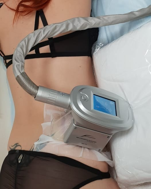 Криолиполиз – достаточно комфортная, эффективная ибезопасная процедура, которая помогает уменьшить кожно-жировую складку вобласти локального жирового отложения всего за35-40 минут. Про...