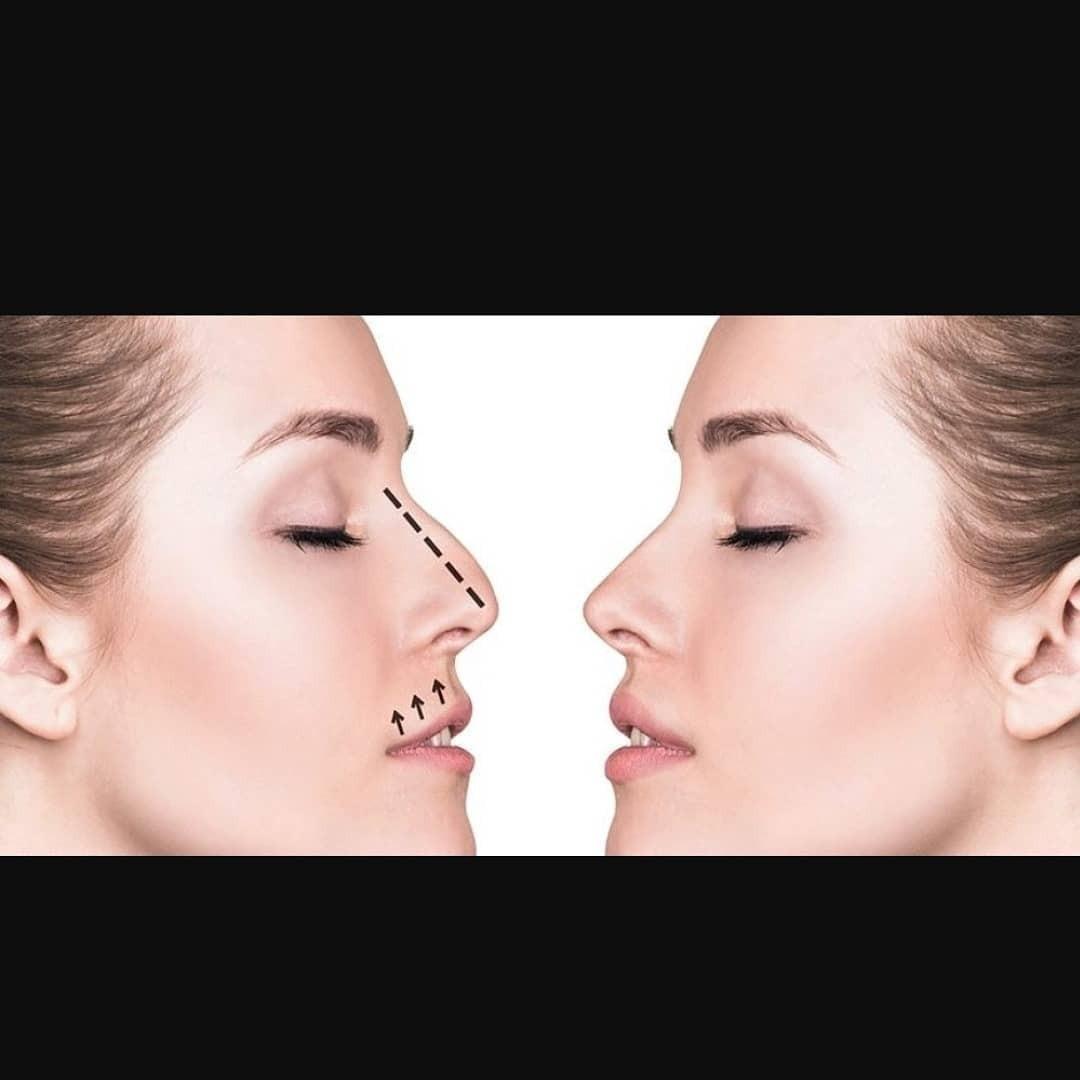 Все о ринопластике филлерами: процедура жидкий нос
