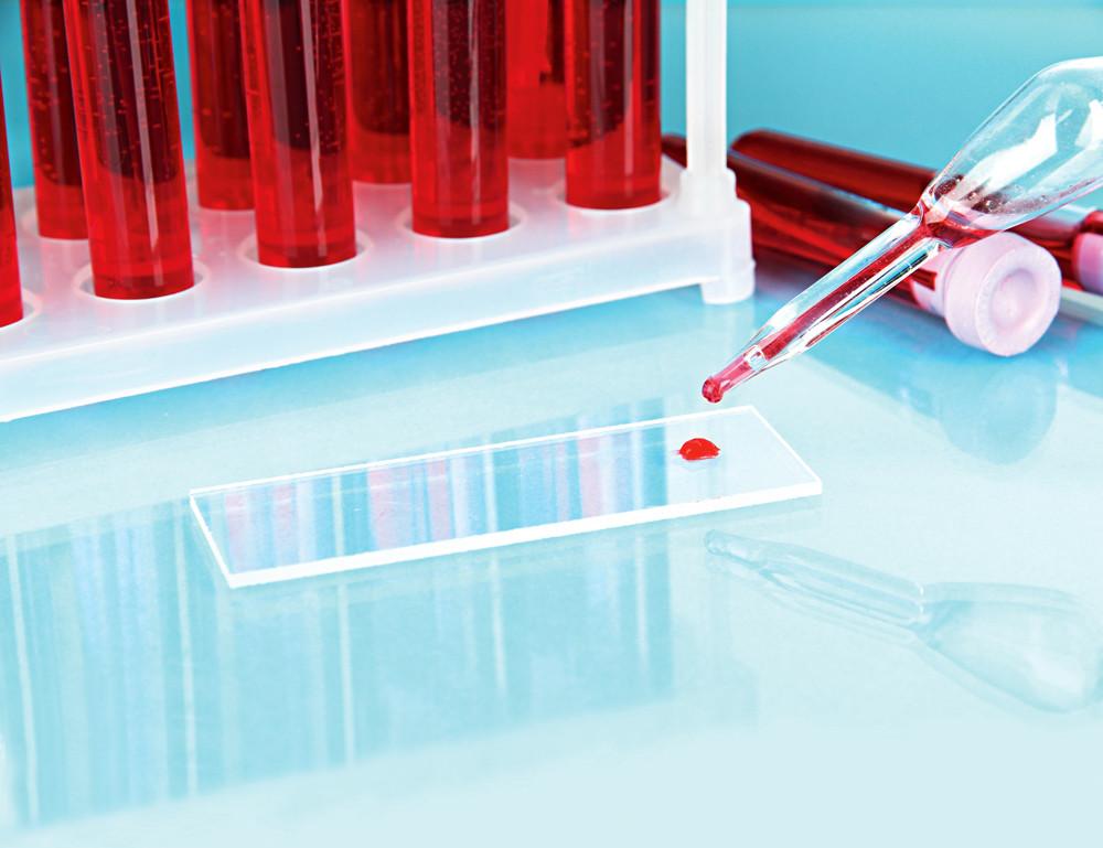 7 советов, как правильно сдавать анализ крови