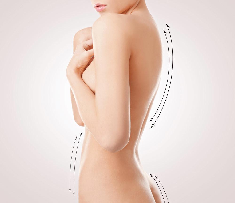 3 процедуры, которые помогут навсегда забыть о целлюлите