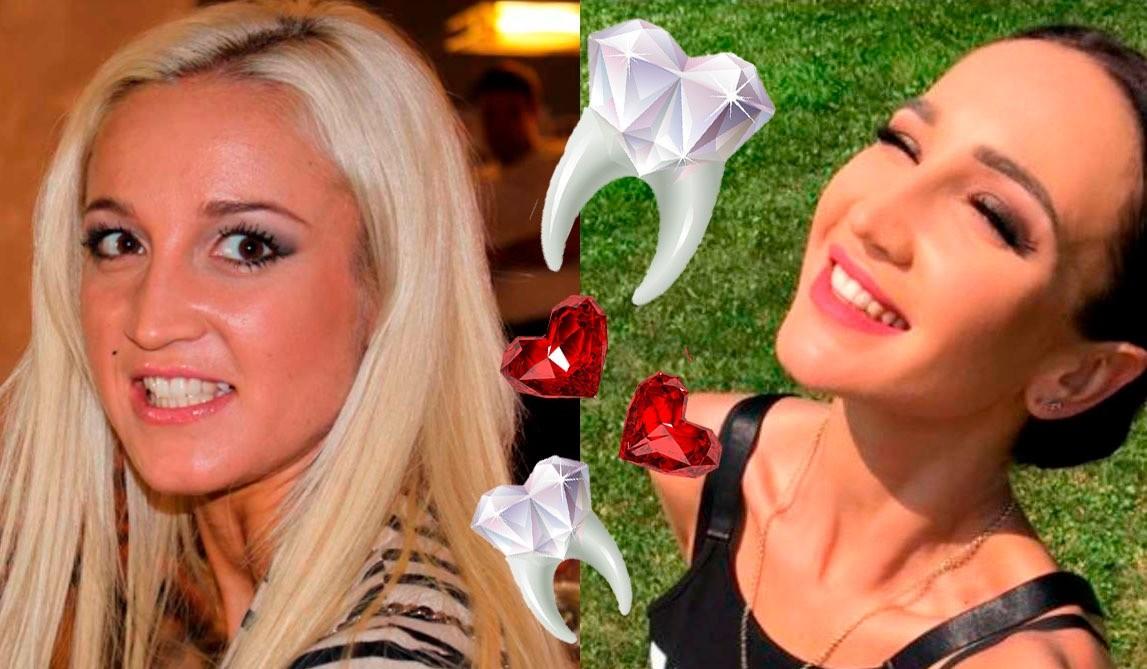 7 звезд со «сделанными» зубами: у кого виниры выглядят натурально, а кто переборщил?