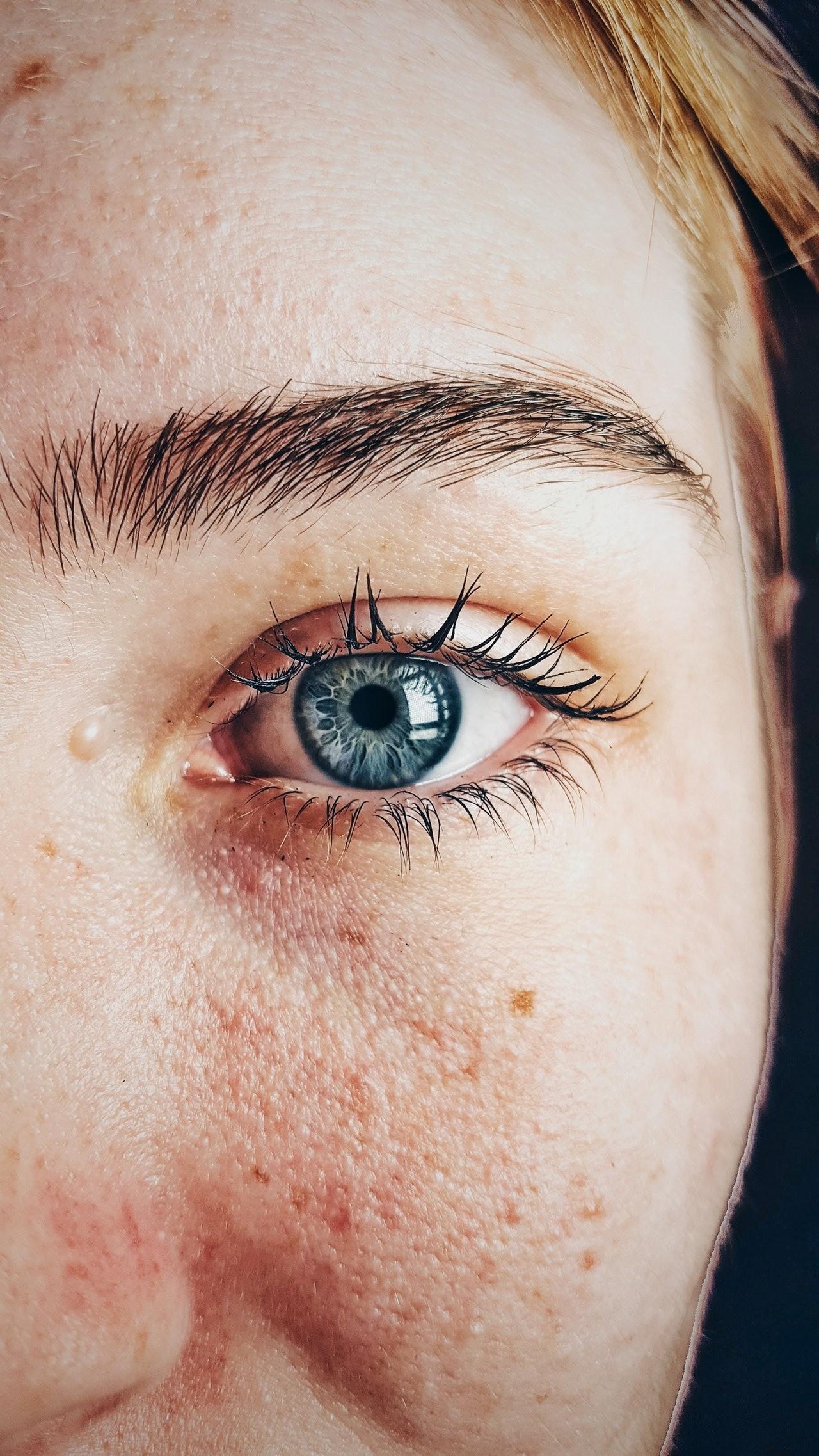 Что говорит о здоровье состояние твоего лица?