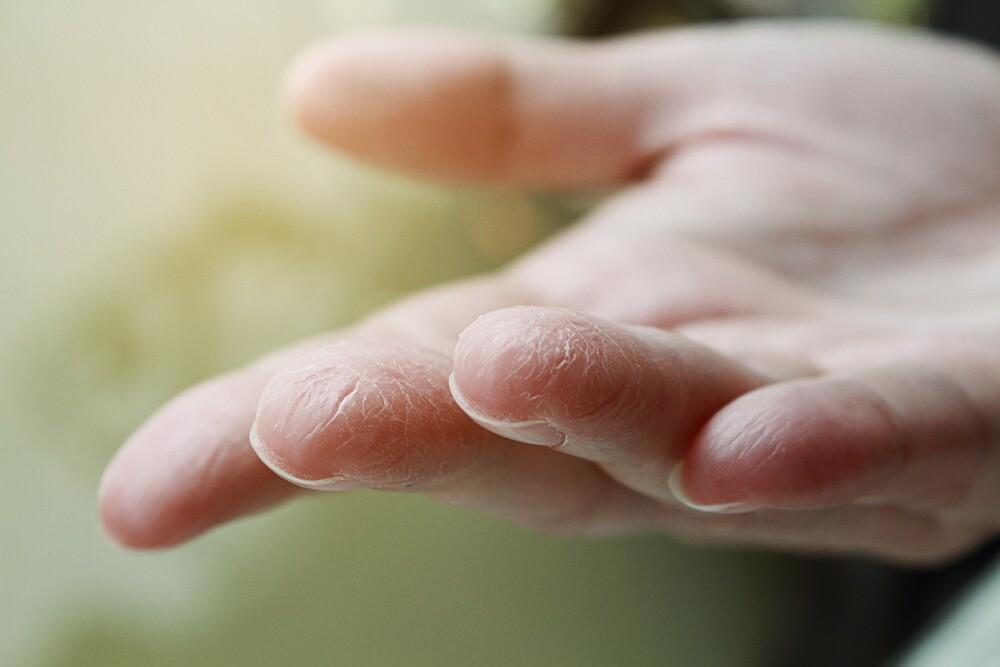 Спросили у эксперта: почему трескается кожа на пальцах рук