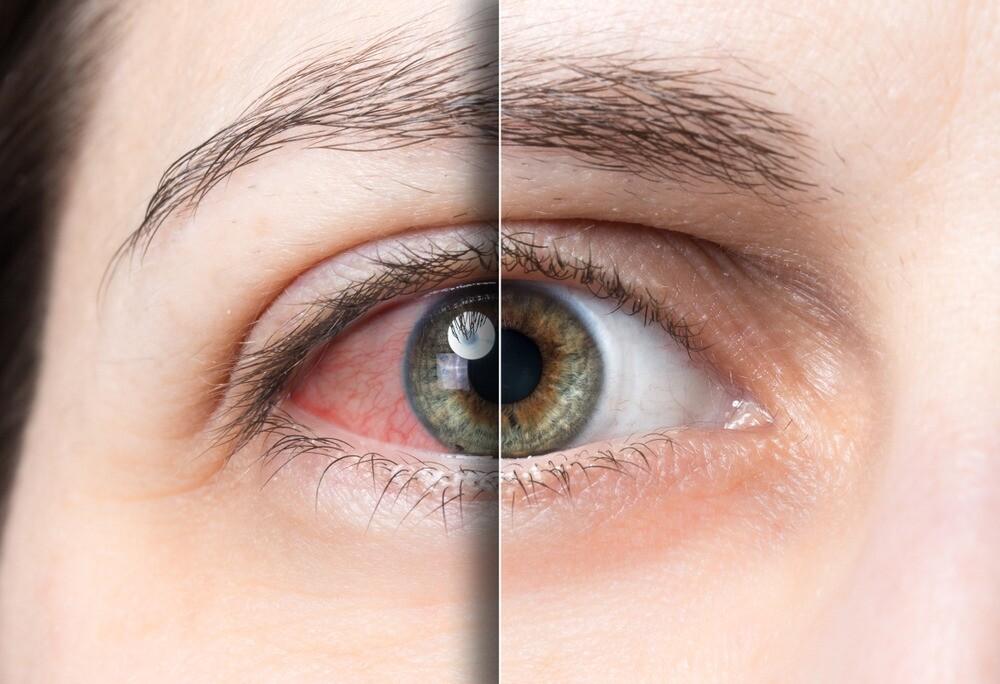 Выбираем глазные капли от конъюнктивита у взрослых