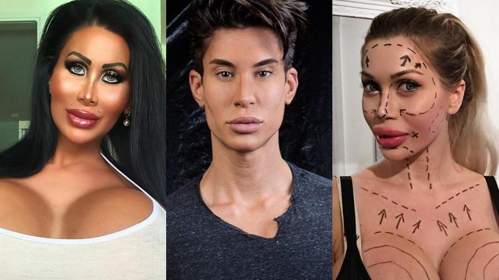 7 звезд интернета, прославившихся благодаря пластике