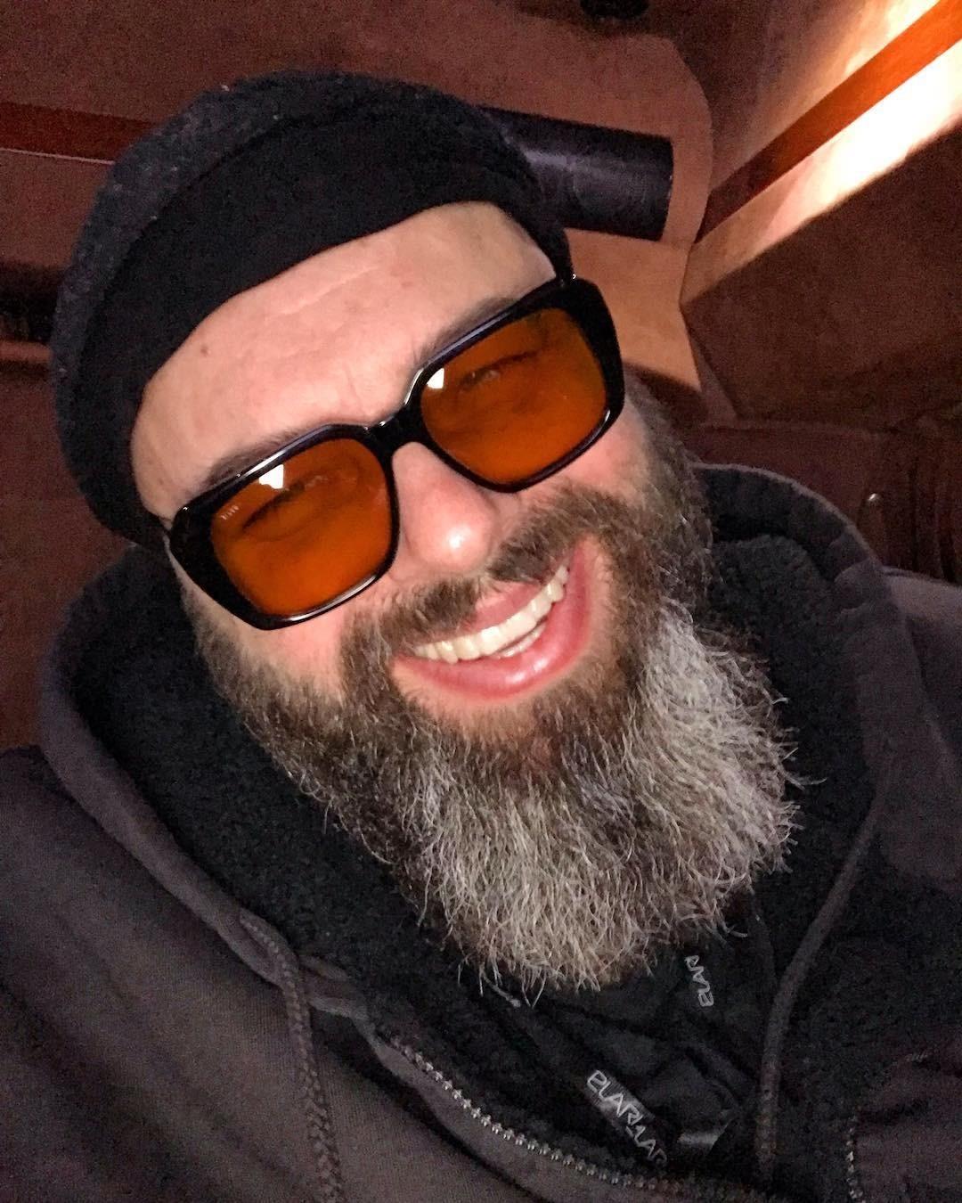 Максим Фадеев признался, что оглох на одно ухо