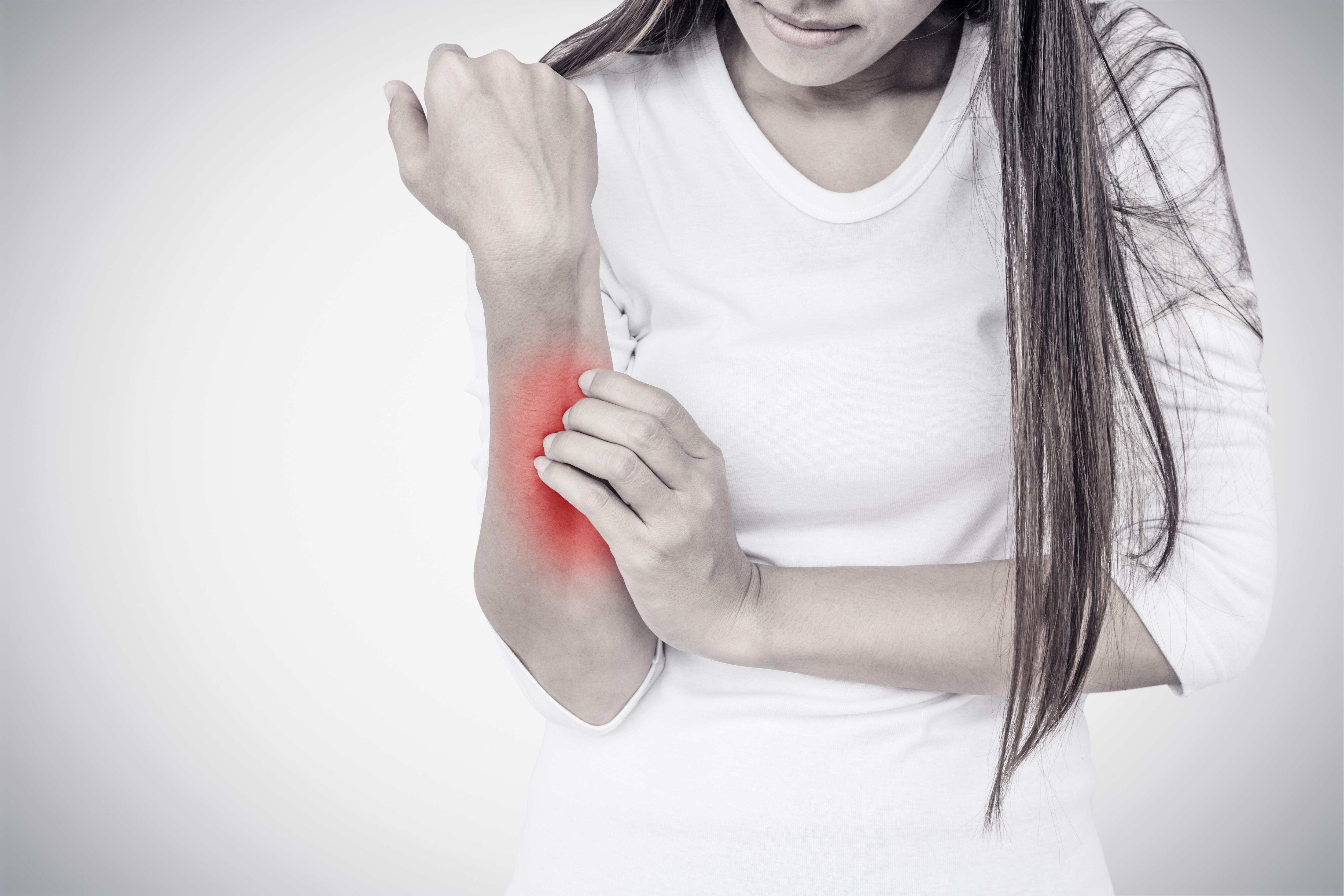 Это АД! 7 главных вопросов об атопическом дерматите