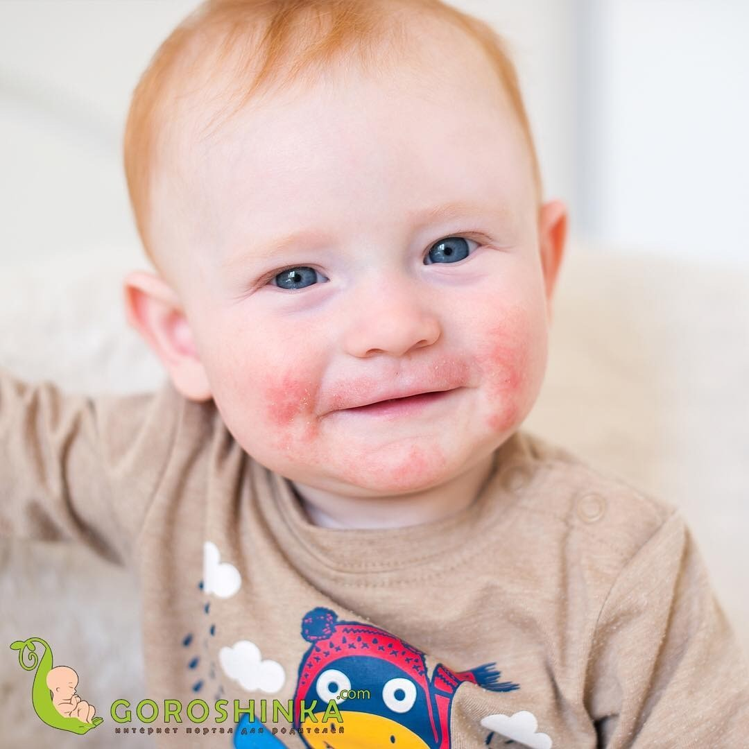 Диатез на щеках у ребенка: лечение, симптомы и профилактика
