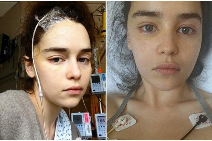 Эмилия Кларк показала свои фотографии после инсульта