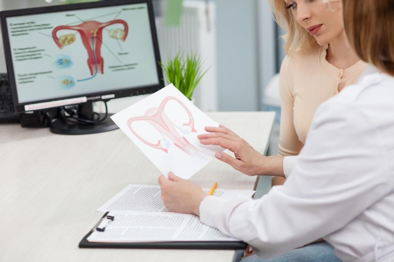 Гиперандрогения у женщин: диагностика и лечение