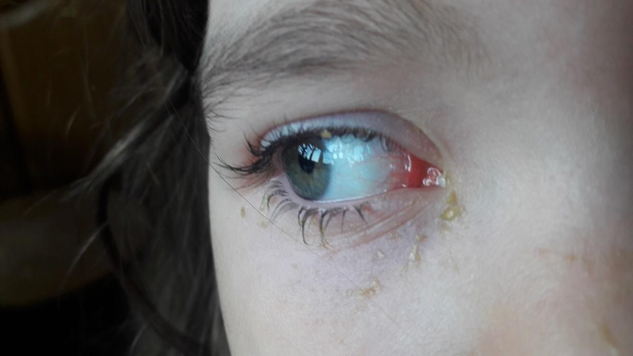 У ребенка гноятся глаза при насморке
