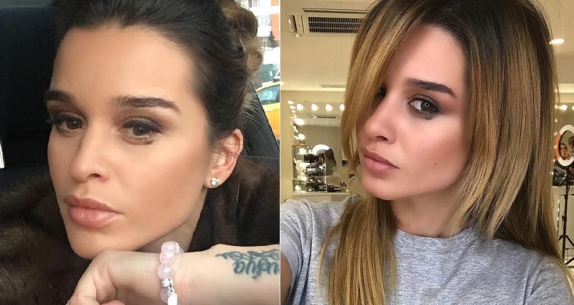 фото бородина до и после пластики