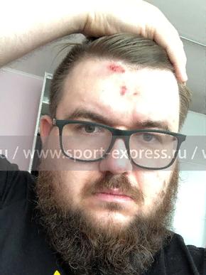 Дмитрия Тарасова подозревают внападении наболельщика